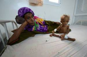 "A woman rests on a bed next to her malnourished son at a hospital in the Red Sea port city of Houdieda, Yemen.  Meanwhile, a U.S. Navy-backed blockade of Yemen's ports has left much of the country, the poorest in the Arab world, ""on the brink of famine. Reuters"